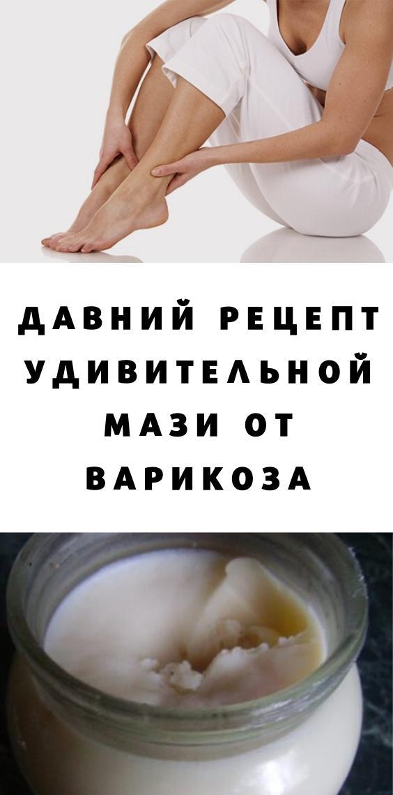 Давний рецепт удивительной мази от варикоза